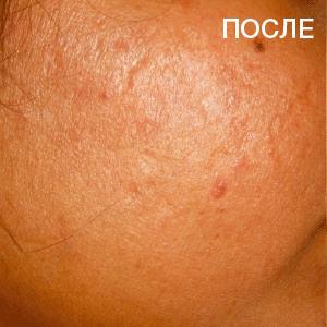 ba_acne_2