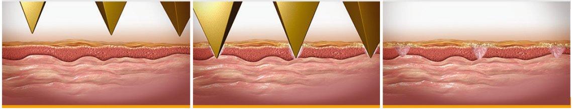 Термомеханическая абляция: краткий контакт с кожей