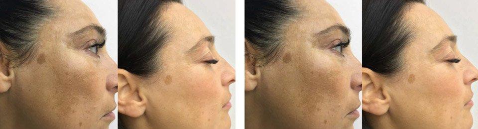 Фото до и после 2 процедур на аппарате Tixel®, сделанных с интервалом 3 недели