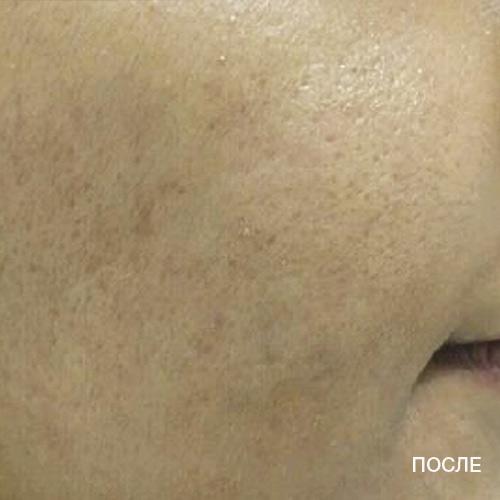 Лечение акне при помощи Тиксел