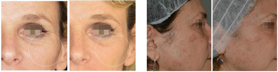 Фракционная процедура для возрастной кожи с Tixel_html_6cc5dc50