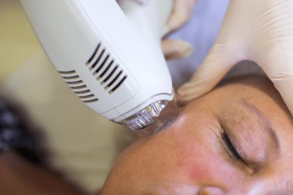 Процедура фракционного лечения возрастной кожи с Tixel®